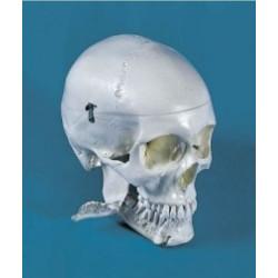 Hammaslääkärin pääkallo